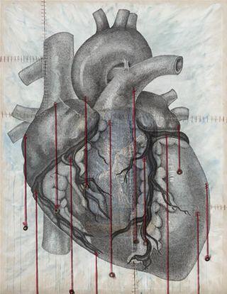 Anatomy_of_a_human_heart_lg